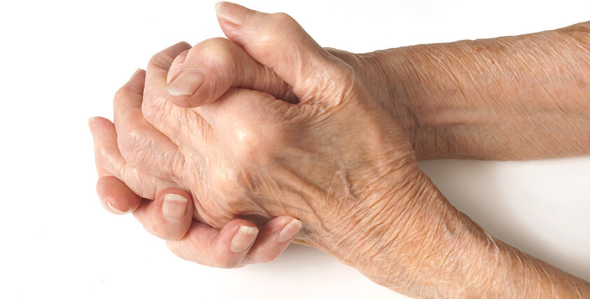 Pain relief for arthritis Springfield, Monett, MO